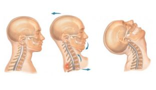 What is Whiplash Treatment?